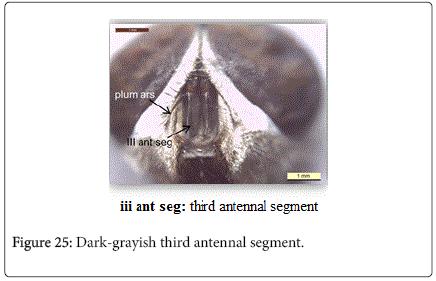 nursing-forensic-studies-Dark-grayish-third-antennal