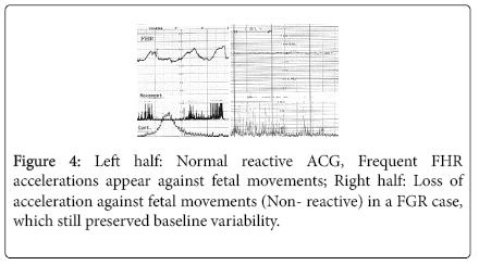 nursing-forensic-studies-Normal-reactive