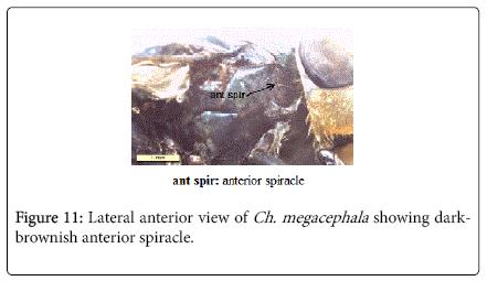 nursing-forensic-studies-darkbrownish-anterior-spiracle