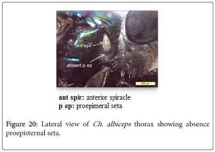 nursing-forensic-studies-thorax-showing-absence