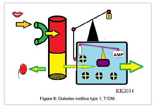 nutrition-food-sciences-Diabetes-mellitus