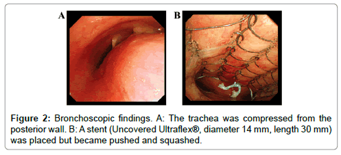 oncology-cancer-case-reports-Bronchoscopic
