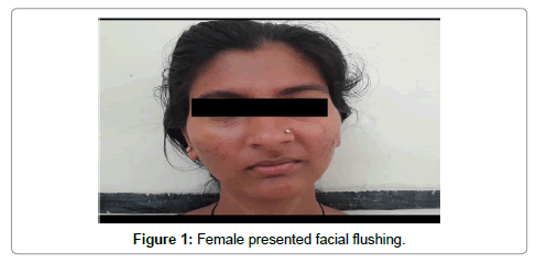 oncology-cancer-case-reports-Female-facial-flushing