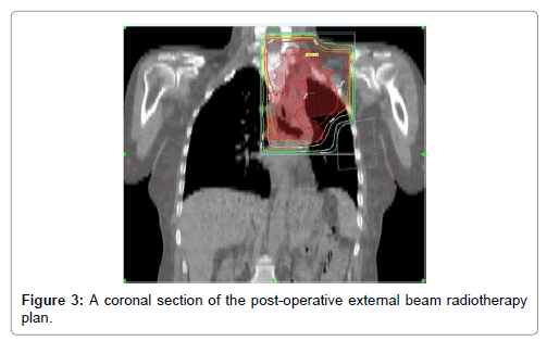 oncology-cancer-case-reports-external-beam-radiotherapy-plan