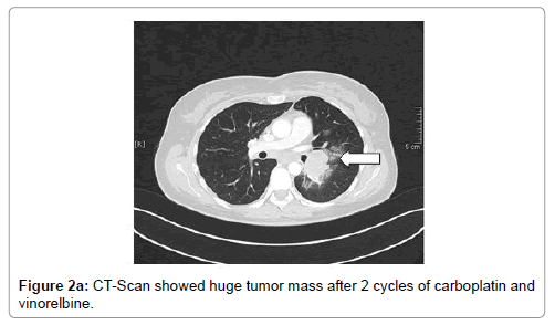 oncology-cancer-case-reports-huge-tumor
