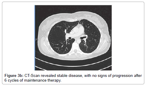 oncology-cancer-case-reports-revealed-stable