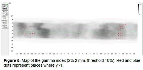 oncology-medicine-practice-Map-gamma-index