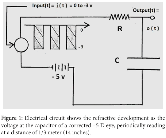 optometry-Electrical-circuit-refractive-development