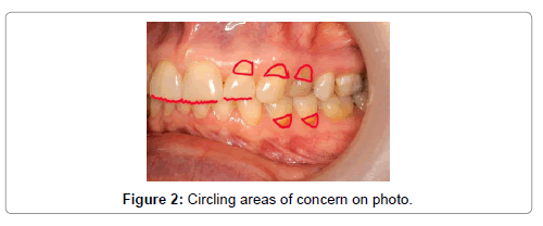 oral-health-case-reports-Circling-areas-concern-photo