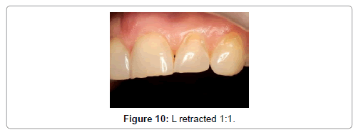 oral-health-case-reports-L-retracted