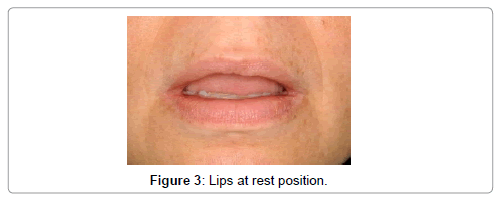 oral-health-case-reports-Lips-rest-position