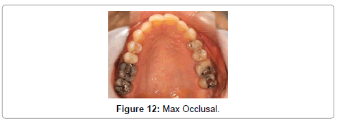 oral-health-case-reports-Max-Occlusal