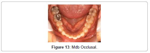 oral-health-case-reports-Mdb-Occlusal