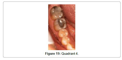 oral-health-case-reports-Quadrant
