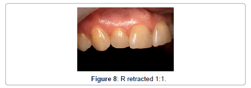oral-health-case-reports-R-retracted