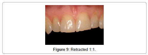 oral-health-case-reports-Retracted