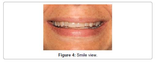 oral-health-case-reports-Smile-view