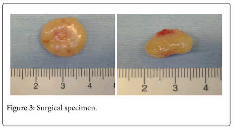 oral-health-case-reports-Surgical-specimen