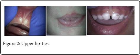oral-health-case-reports-Upper-lip-ties