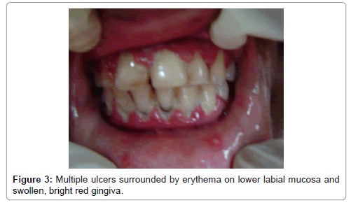 oral-health-case-reports-erythema-lower-labial-mucosa