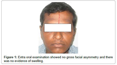 oral-health-case-reports-gross-facial-asymmetry