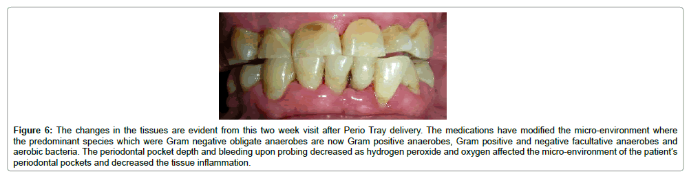 oral-health-case-reports-periodontal-pocket