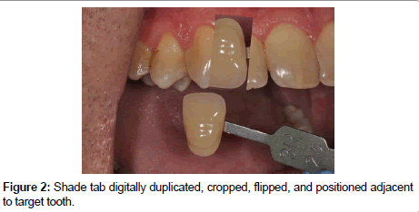 oral-health-case-reports-positioned-adjacent