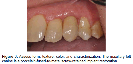 oral-health-case-reports-screw-retained-implant