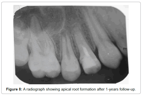 oral-hygiene-health-a-radiograph-formation