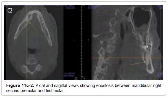 oral-hygiene-health-axial-sagittal-enostosis