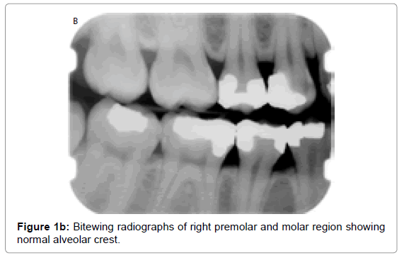 oral-hygiene-health-bitewing-radiographs-right