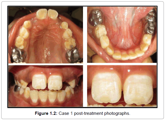oral-hygiene-health-case-1-post-treatment