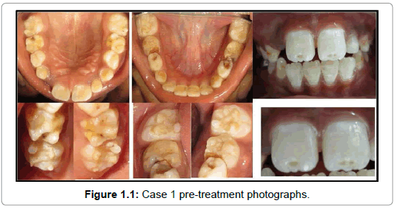 oral-hygiene-health-case-1-pre-treatment