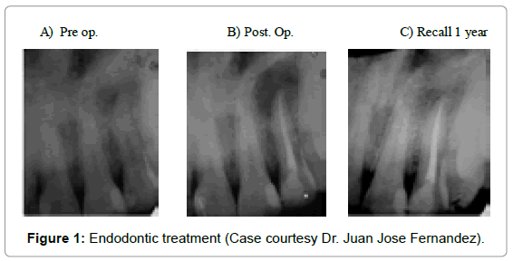 oral-hygiene-health-endodontic-treatment