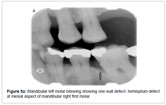 oral-hygiene-health-mandibular-left-molar