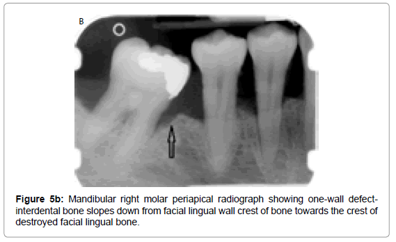 oral-hygiene-health-mandibular-right-molar
