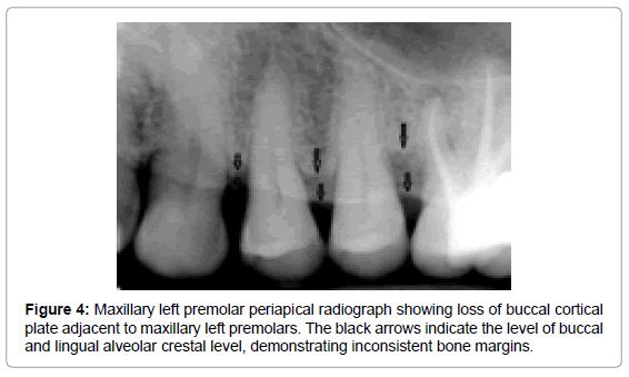 oral-hygiene-health-maxillary-left-premolar