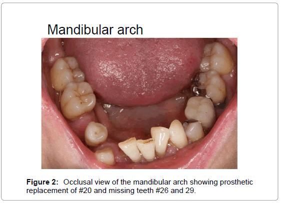 oral-hygiene-health-occlusal-view-mandibular
