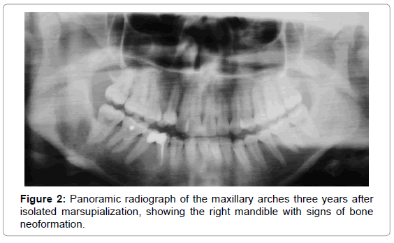 oral-hygiene-health-panoramic-isolated-mandible