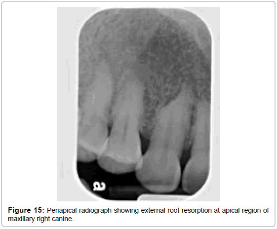 oral-hygiene-health-periapical-radiograph-external