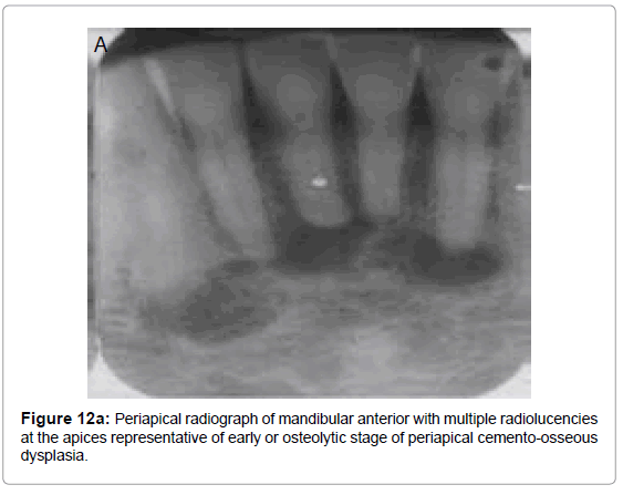oral-hygiene-health-periapical-radiograph-mandibular
