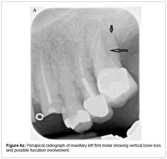oral-hygiene-health-periapical-radiograph-maxillary