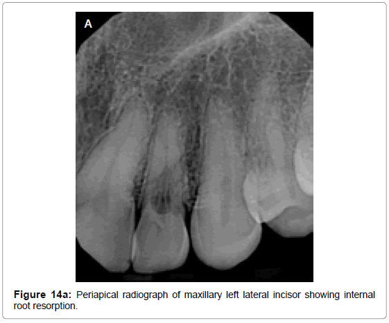 oral-hygiene-health-periapical-radiograph-resorption