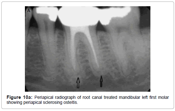 oral-hygiene-health-periapical-radiograph-root