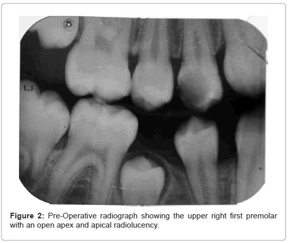 oral-hygiene-health-pre-operative-radiograph