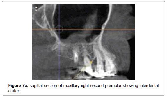 oral-hygiene-health-sagittal-maxillary-premolar