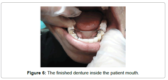 oral-hygiene-health-the-finished-denture