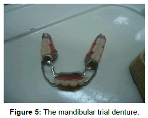 oral-hygiene-health-the-mandibular-trial
