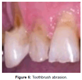 oral-hygiene-health-toothbrush-abrasion