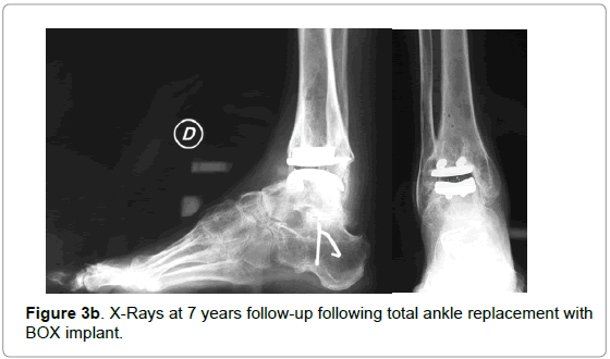 orthopedic-muscular-system-ankle-replacement-implant
